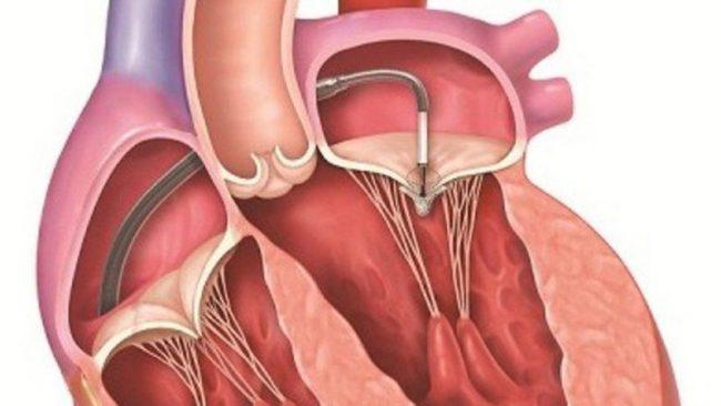 Bệnh hở van tim nên ăn gì