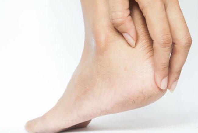 Gai gót chân điều trị thế nào